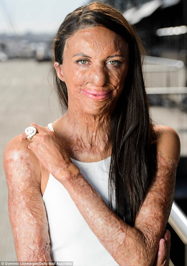 278C8CD800000578-3037950-Turia_Pitt_pictured_who_experienced_burns_to_64_per_cent_of_her_-m-64_1428994675076